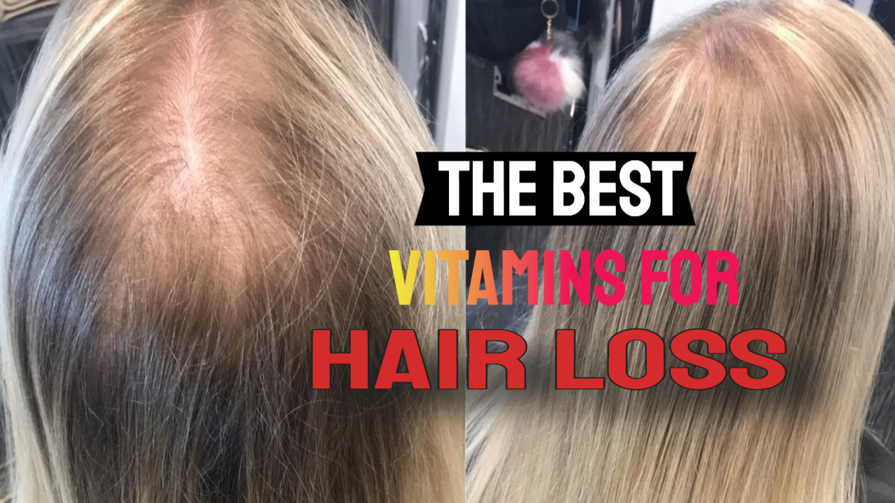 The Best Vitamins For Thinning Hair & DNA Vitamins for Hair Growth
