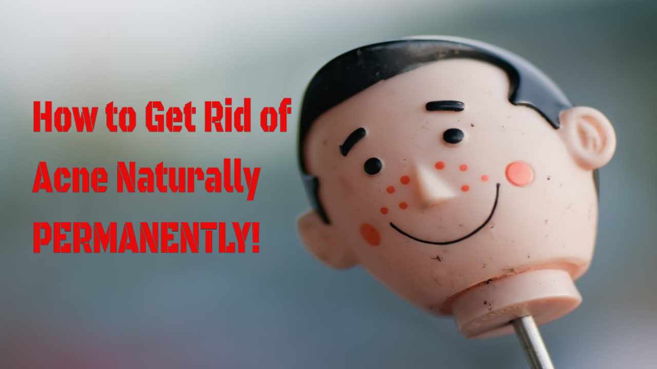 How to Get Rid of Acne Naturally Permanently